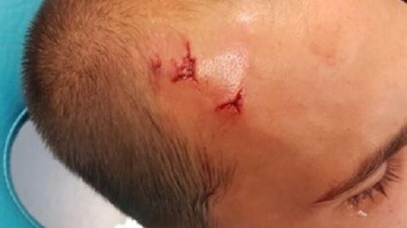 Bas Dost ranny po ataku kiboli