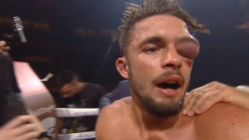 Koszmarna kontuzja w boksie. Oko mu tak spuchło, że aż trudno uwierzyć! [ZDJĘCIA]